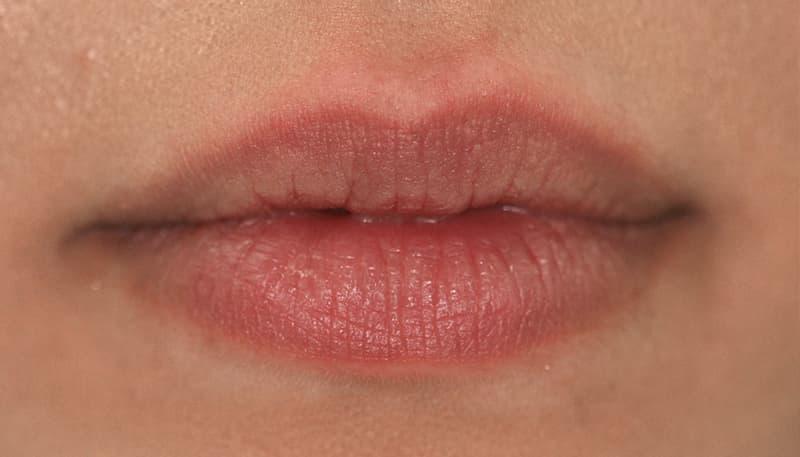 Adelaide Lip Fillers