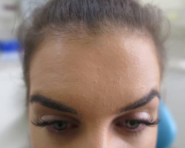 Adelaide botox